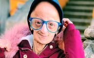بیماری وحشتناک دختر۲۰ ساله را ۱۴۰ ساله کرد! +تصاویر
