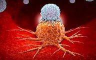 تغییر سبک زندگی از ابتلا به سرطان پیشگیری میکند