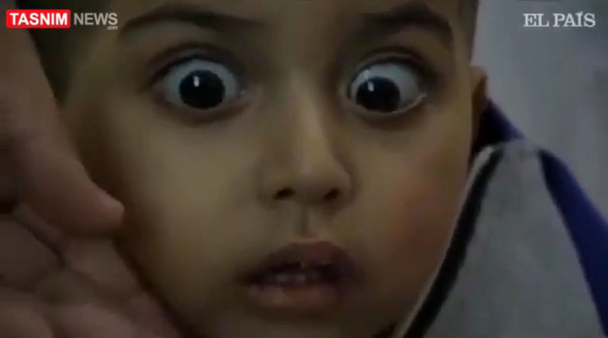 تصویری دردناک از شوکه شدن کودک فلسطینی +عکس