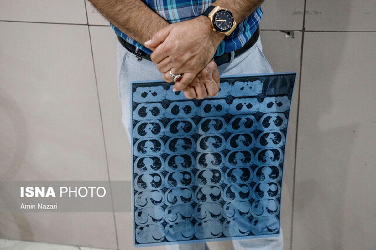 نشانههای درگیری ریه در بیماران کرونایی