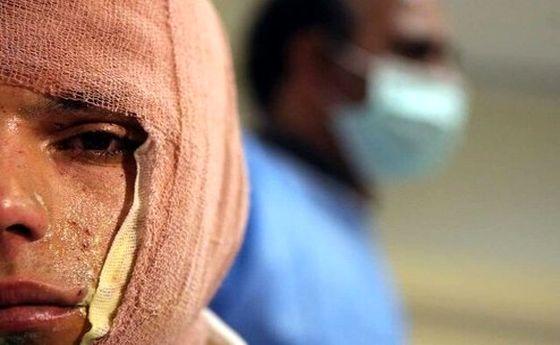 انفجار مواد محترقه سه نوجوان را راهی بیمارستان کرد