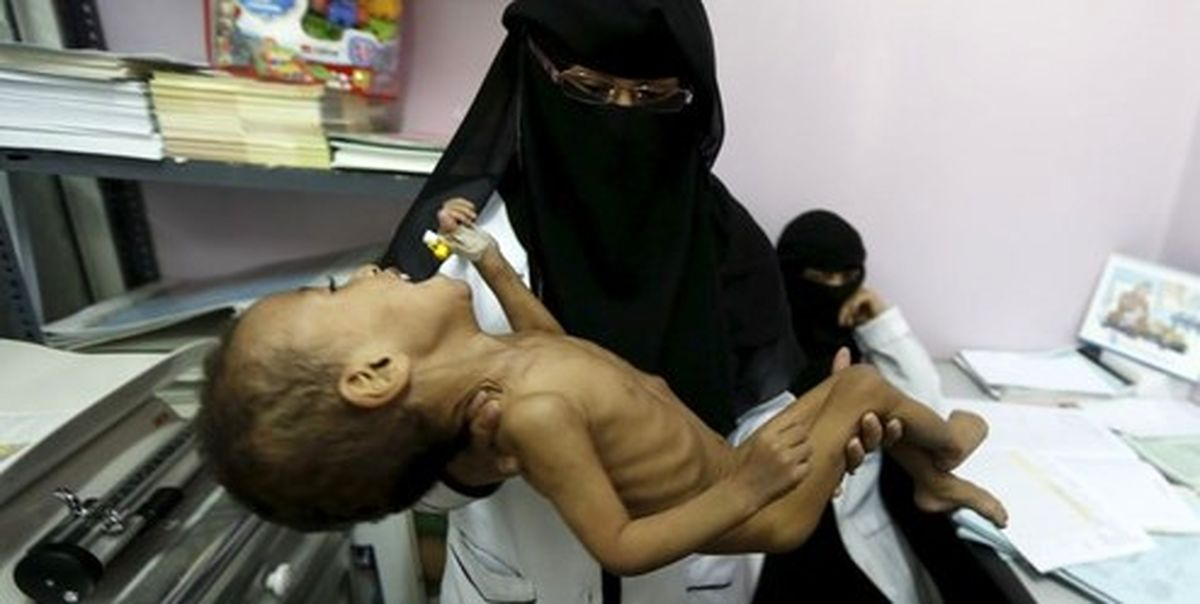 آمار رسمی   هر ۵ دقیقه یک کودک یمنی میمیرد