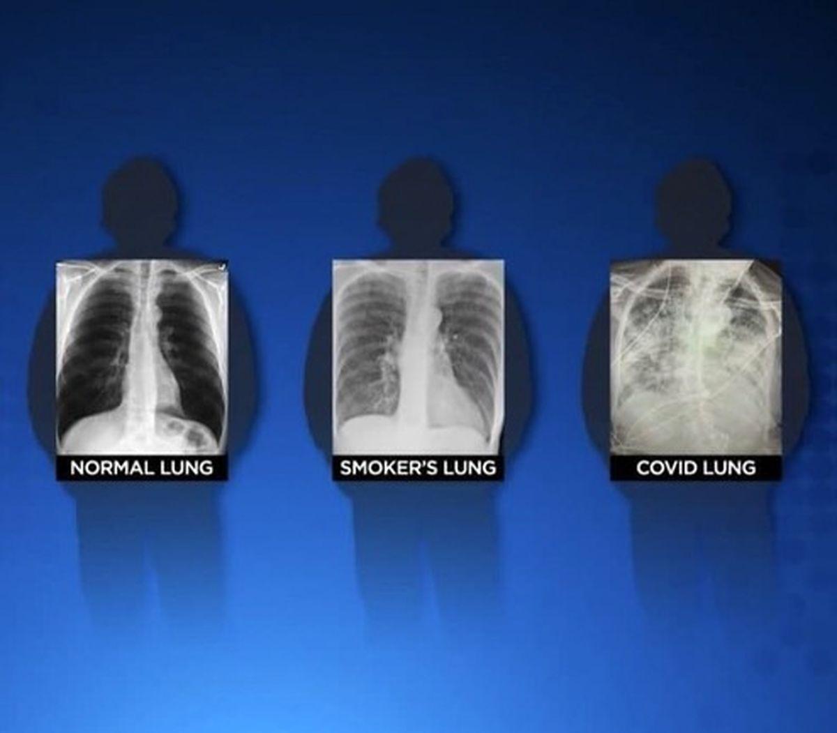 ریه کرونایی از ریه سیگاری هم بدتر است! +عکس