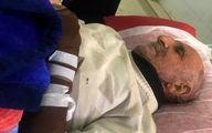 حمله پلنگ به پیرمرد ۷۸ ساله سمنانی +عکس